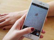Hautkrebs erkennen mit einer App